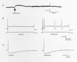 Action potentials recorded from a parasympathetic neuron. An intracellular electrode was used to record the