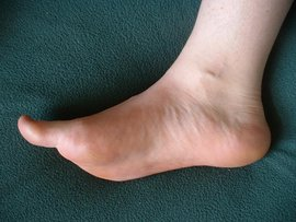 Photo of foot