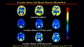 cocaine brain scan